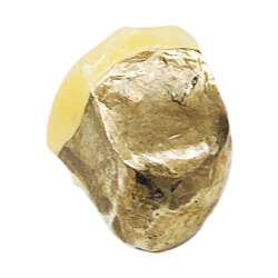 銀 - 銀歯